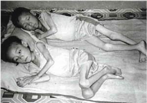 starving_children (1)